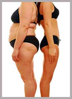 after images Lipo