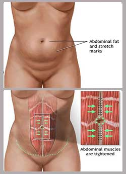 before and after adminoplasty-procedure