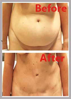 after images tummy tuck